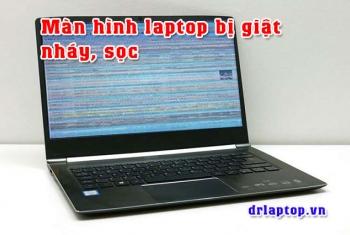 Màn hình laptop bị Giật, Tối, Đen, Chớp, Nhảy, Sọc ngang, Sọc dọc